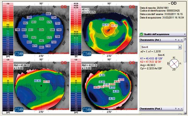 Applicazione di lenti a contatto su cornee operate di chirurgia refrattiva per la correzione della presbiopia in soggetti ipermetropi – II Parte