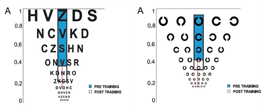 L'apprendimento percettivo migliora la sensibilità al contrasto e l'acuità visiva nelle basse miopie